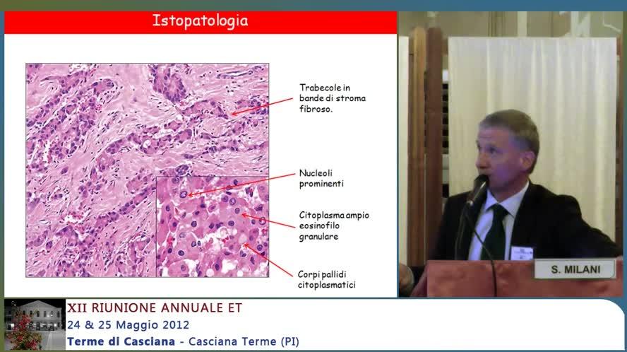 Il Carcinoma Fibrolamellare