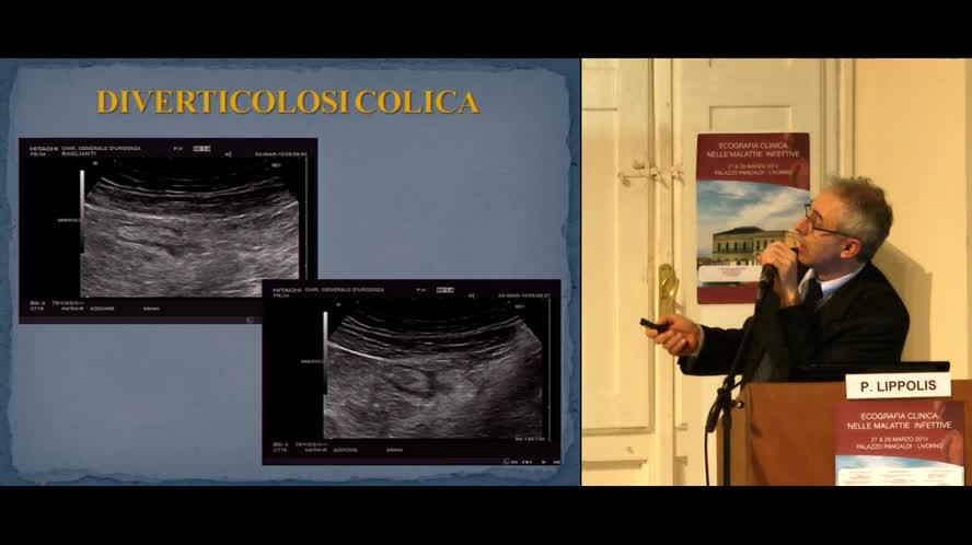 Patologia intestinale enterite appendicite e diverticolite