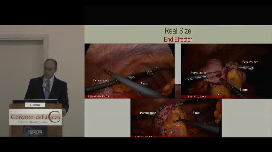 Reducing the trauma in Laparoscopic surgery