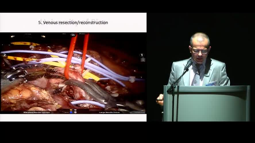 Minimally invasive pancreatoduodenectomy: robotic vs laparoscopic approach