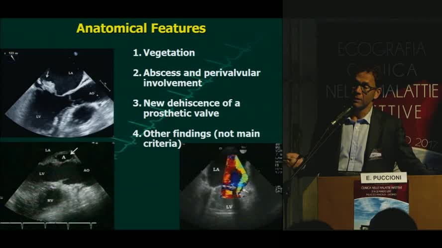 Diagnosi ecografica di endocardite