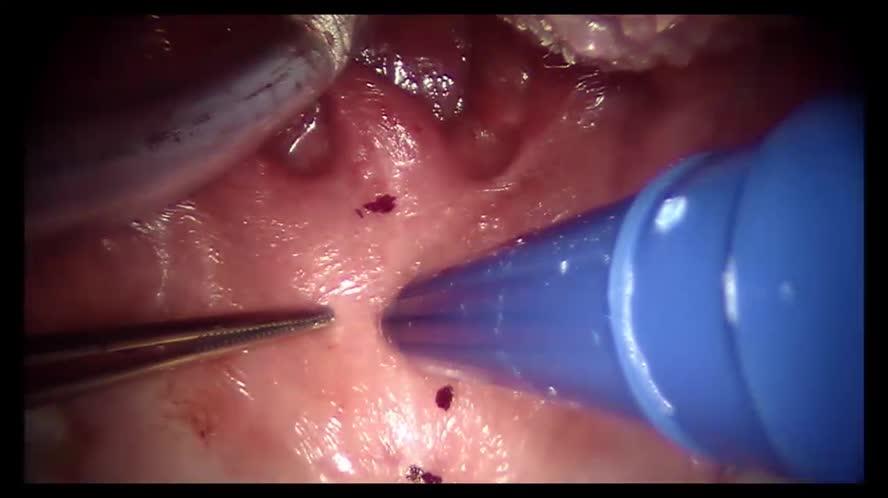 Palatoplastica anteriore