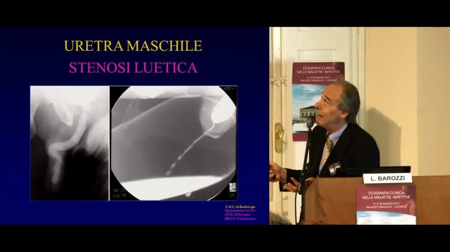 Infezioni renali e del tratto genito-urinario maschile