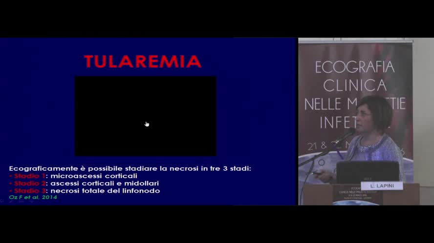 Diagnostica ecografica nelle linfoadenopatie infettive e nelle sindromi mononucleosiche