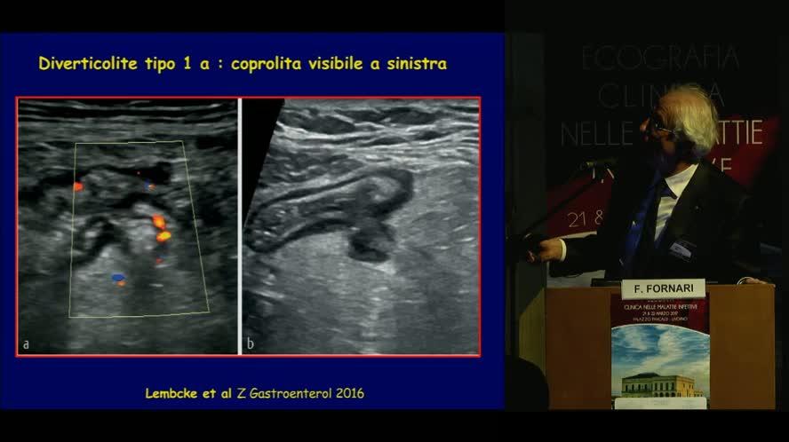 Patologia intestinale: enteriti, appendicite e diverticolite