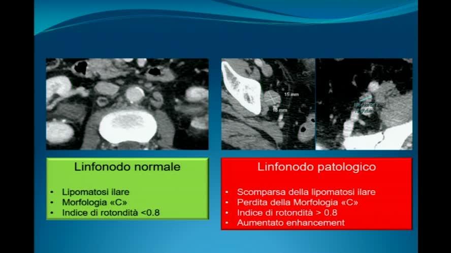 L'imaging diagnostico nel carcinoma della prostata della TC