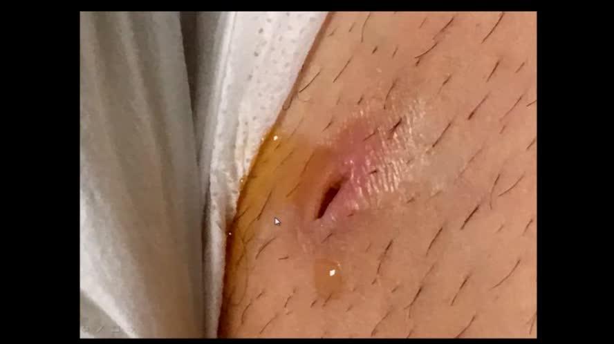 Ecografia in urgenza nel paziente con sepsi: L'infettivologo