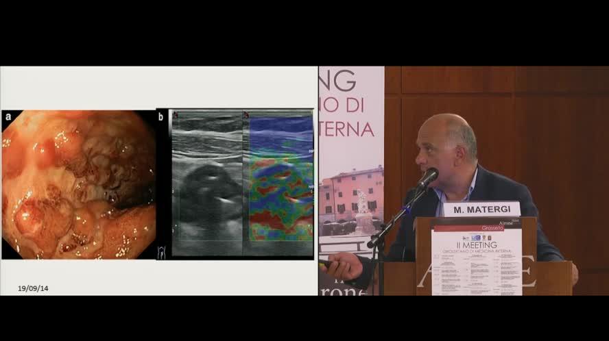 La fase attiva della colite ulcerosa: attualità nella diagnosi e nella terapia
