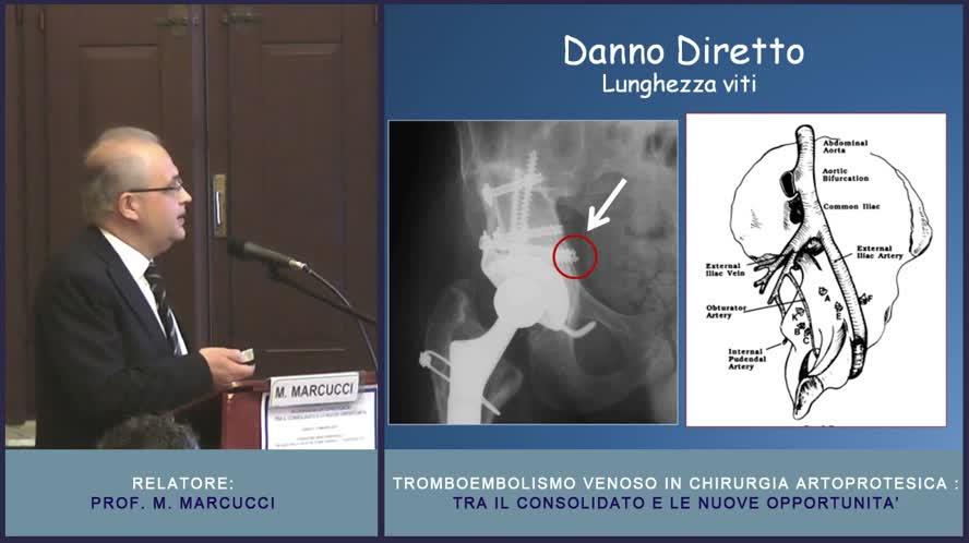 Il problema del TEV in ortopedia protesica