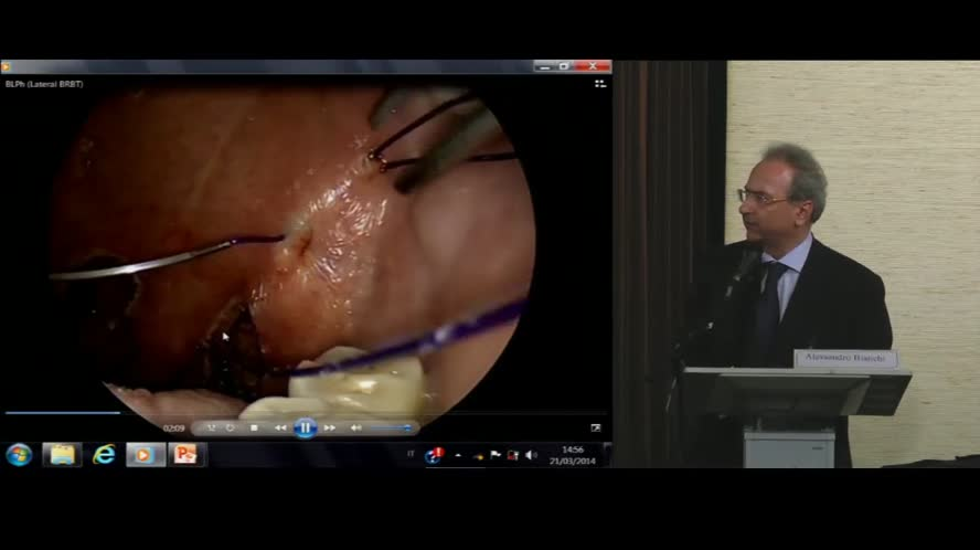 Barber Lateral Pharyngoplasty - BLPh