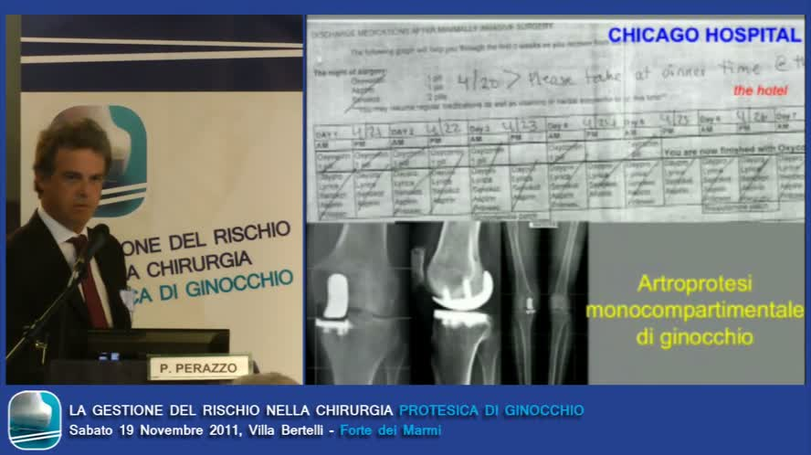 Update e valori dell'approccio analgesico multimodale in chirurgia maggiore di ginocchio