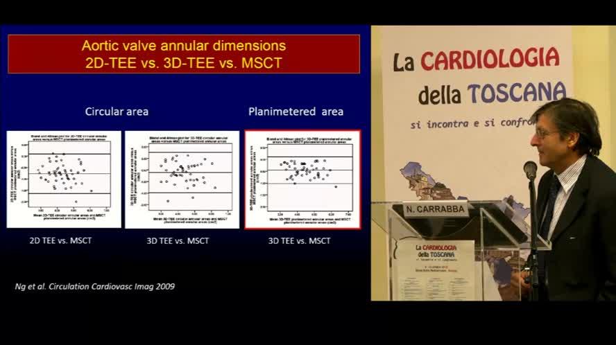 Ruolo dell'ecografia, dell'angio-TC e della RMN cardiaca nella selezione del paziente e nella scelta del device per TAVI