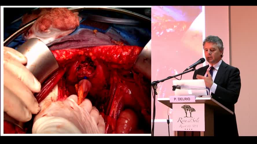 Surgical treatment of pelvic recurrence