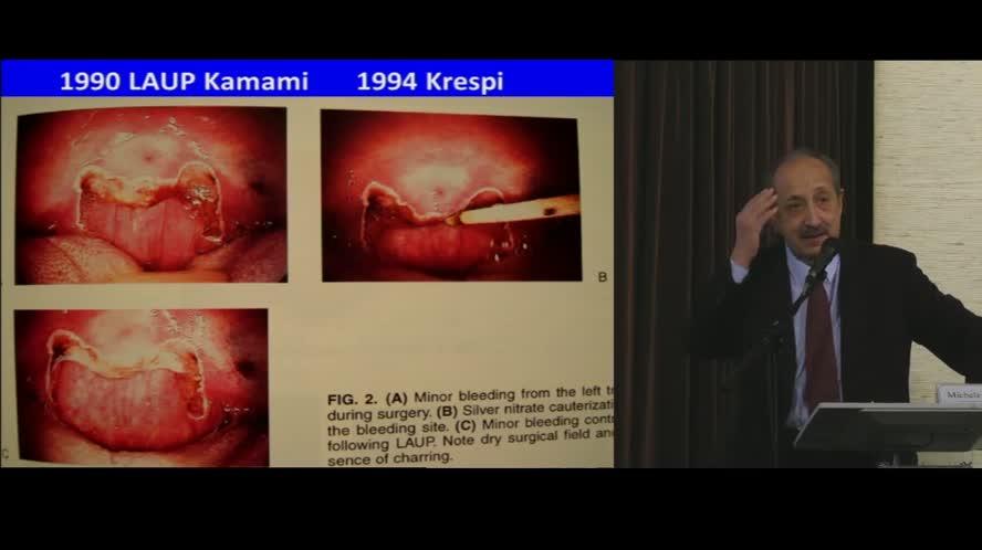 Evoluzione della chirurgia orofaringea / palatale