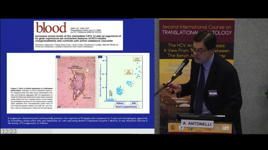 The emerging role of cytokines in determining the natural history of HCV disease